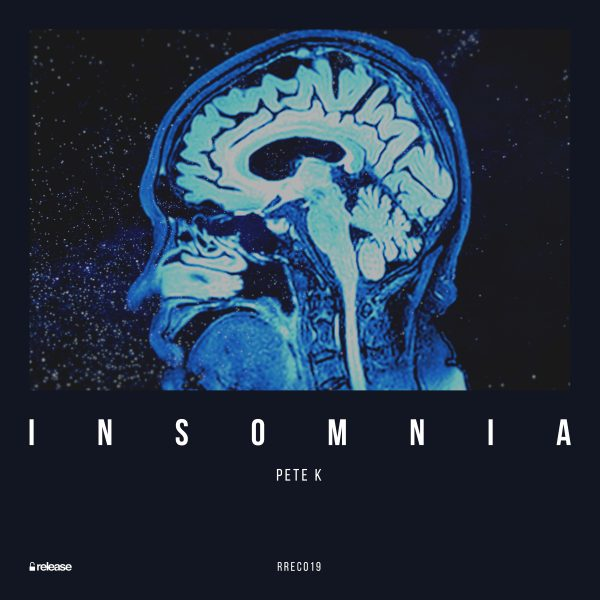 Pete K ft. CAYO - Insomnia